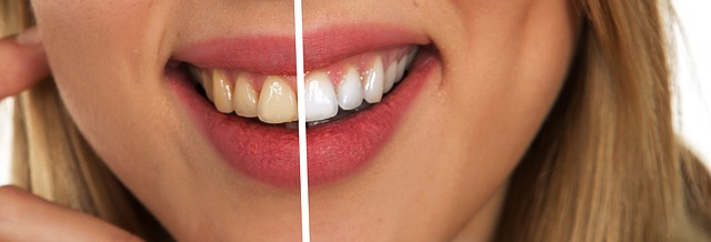 Why Does Teeth Whitening Hurt Cary Cosmetic Dentistry