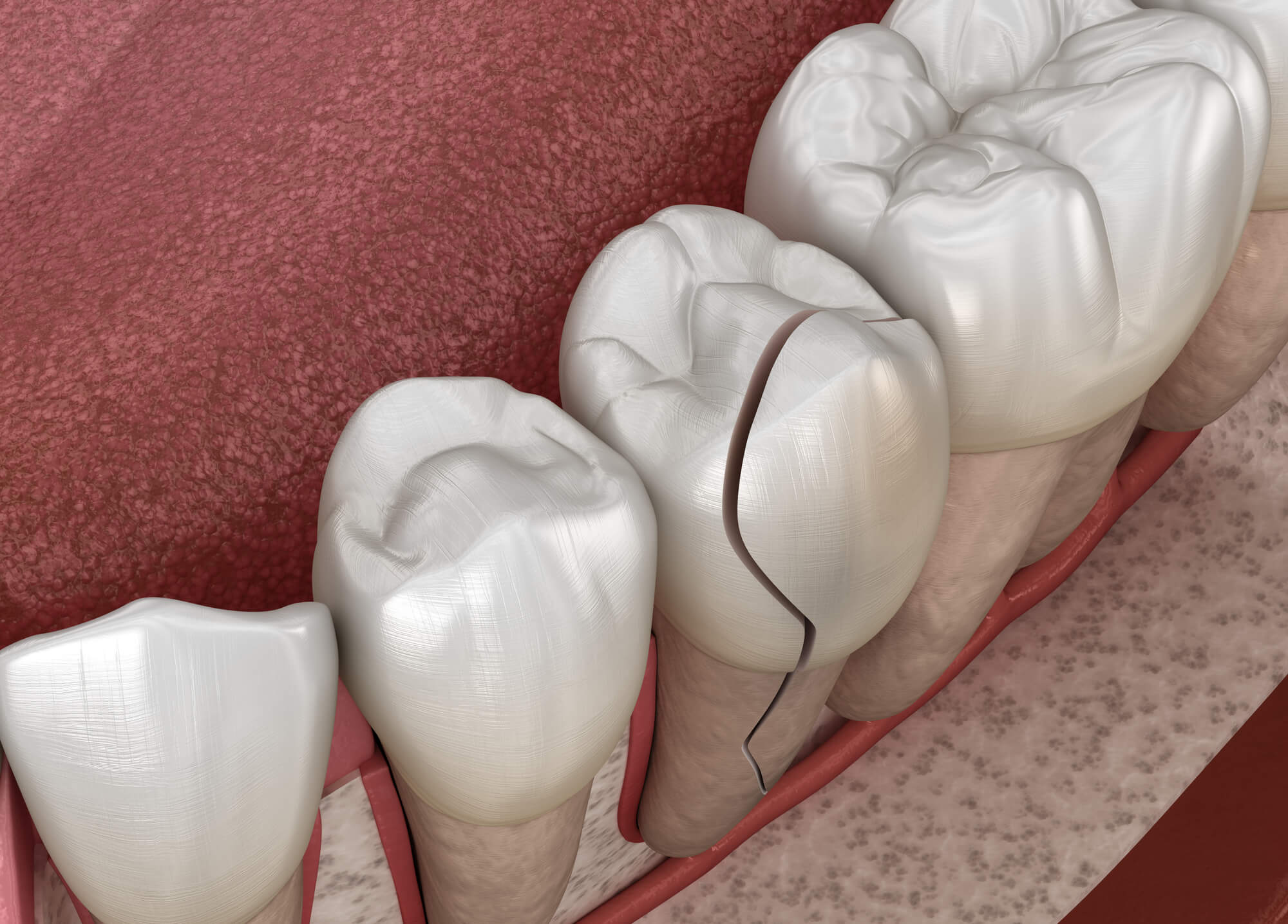 Where can I go for a Broken Tooth Cary NC?
