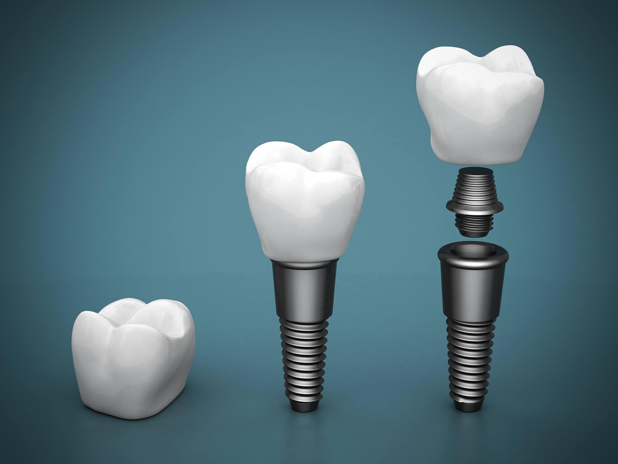 diagram dental implants cary nc